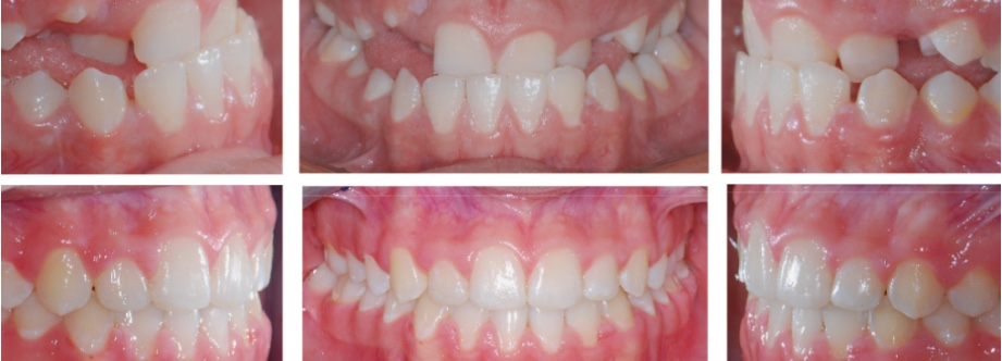 Before And After 01 Anterior