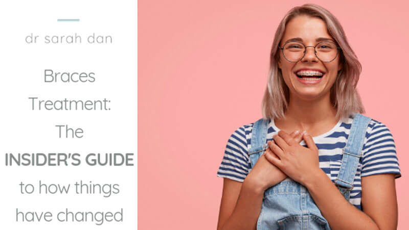 Braces Treatment: The Insider guide to how things have changed.